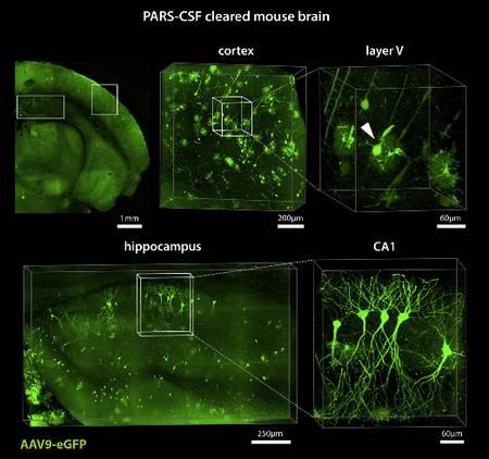 Le procédé permet de rendre visibles, au sein de leur organe et sans endommager leur interconnexion, des cellules nerveuses ou des vaisseaux sanguins, comme ici, dans ces images agrandies du cortex et de l'hippocampe du cerveau, et de simplifier leur étude in situ. © Yang et al., Cell