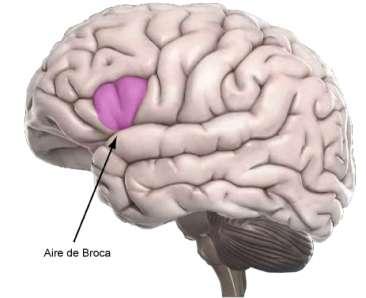 La célèbre aire de Broca, associée au langage grâce à l'analyse des effets d'une lésion dans un cas pathologique, une méthode classique pour l'étude des fonctions du cerveau. Pourtant, ces dernières ne seraient pas localisées à ce point mais portées par des interconnexions plus larges. © Université de Montpellier