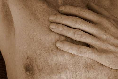 Les hommes aussi peuvent être atteints d'un cancer du sein. © just.Luc / Licence Creative Commons