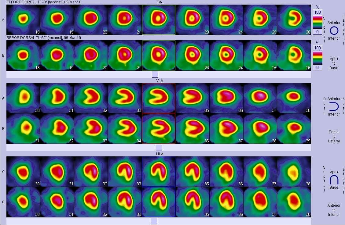Les scintigraphies sont des images réalisées dans les services de médecine nucléaire. © Dr Proffit, Poitiers