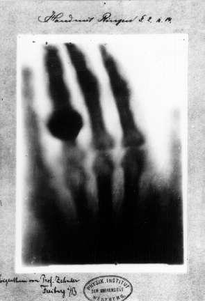 Découverte du rayon x. © Wilhelm Röntgen, 1895