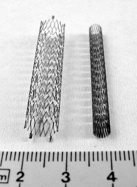 Un stent est une endoprothèse métallique cylindrique. © Franck C. Müller, Wikimedia, CC by-sa 2.5