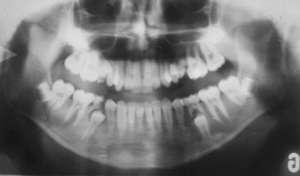 Radiographie panoramique de la machoire