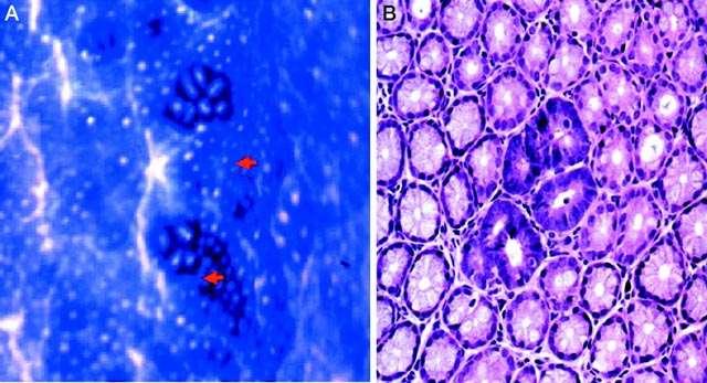 Des lésions prénéoplasiques sur l'épithélium intestinal sont visibles sur l'image de gauche (flèches rouges) et sur celle de droite (violet plus foncé). © Nature