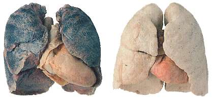A gauche des poumons de fumeur (la couleur noire provient des goudrons). A droite des poumons sains.