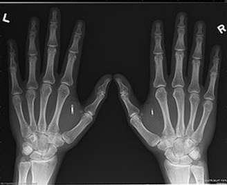 Ces deux mains, portant chacune une puce RFID, sont celles de Amal Graafstra, auteur d'un livre intitulé RFID Toys.