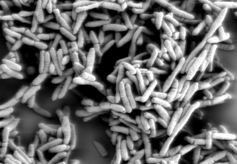 Les bactéries du genre Pseudomonas, grossies ici 5.000 fois, sont aérobies strictes. Mais cette nouvelle bactérie découverte se satisfait très bien de niveaux très faibles en oxygène pour survivre. De quoi coloniser Mars ? © EMSL, Flickr, cc by nc sa 2.0