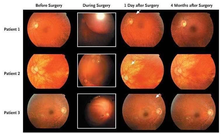 Images de rétine des trois patients britanniques avant l'intervention, pendant et après. Le patient 3 est le seul à avoir bénéficié d'une amélioration de la vue © James W.B. Bainbridge et al., The new england journal of medicine