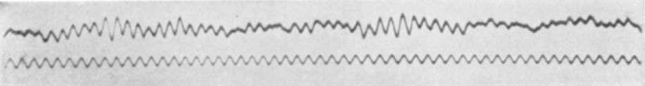 Le premier EEG, tel qu'il a été enregistré par Hans Berger publié en 1929. © Domenico Forastiere, Wikimedia