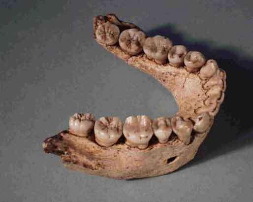 La forme générale de la mandibule D-211 trouvée à Dmanisi, en Géorgie, diffère de toutes celles connues pour Homo erectus. Et pour cause : elle n'appartiendrait pas à cette espèce, contrairement à ce qu'on a cru jusqu'en 2007. © David Lordkipanidze
