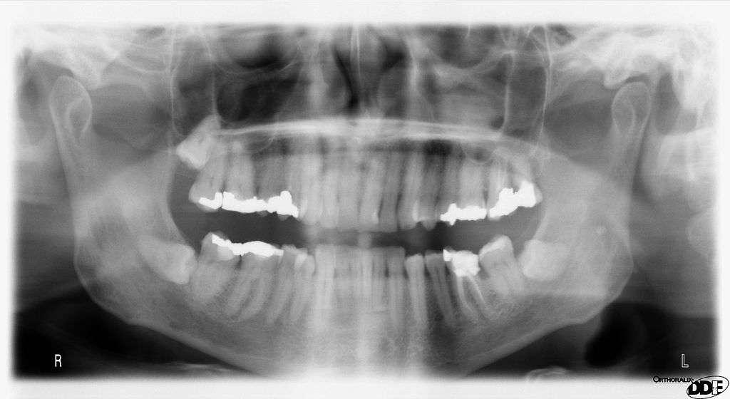 Les radiographies panoramiques (ici à l'image) accroissent les risques de développer un méningiome, tumeur bénigne du cerveau. Cela pourrait amener les spécialistes à revoir les critères d'utilisation de ces examens médicaux, et éviter l'exposition aux rayons X si la situation ne s'y prête pas. Cependant, les doses utilisées aujourd'hui dans les radiothérapies sont moins importantes que celles envoyées autrefois. © Timpo, Wikipédia, DP