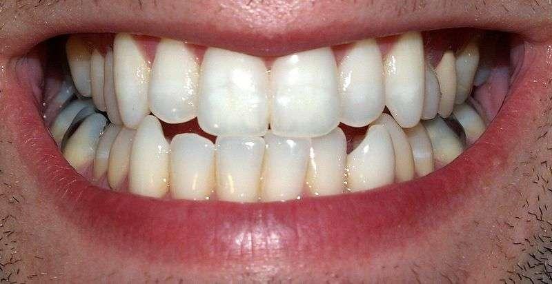 Les dents sont aussi protégées des caries par la salive. © David Shankbone, Wikimedia, CC by-sa 3.0