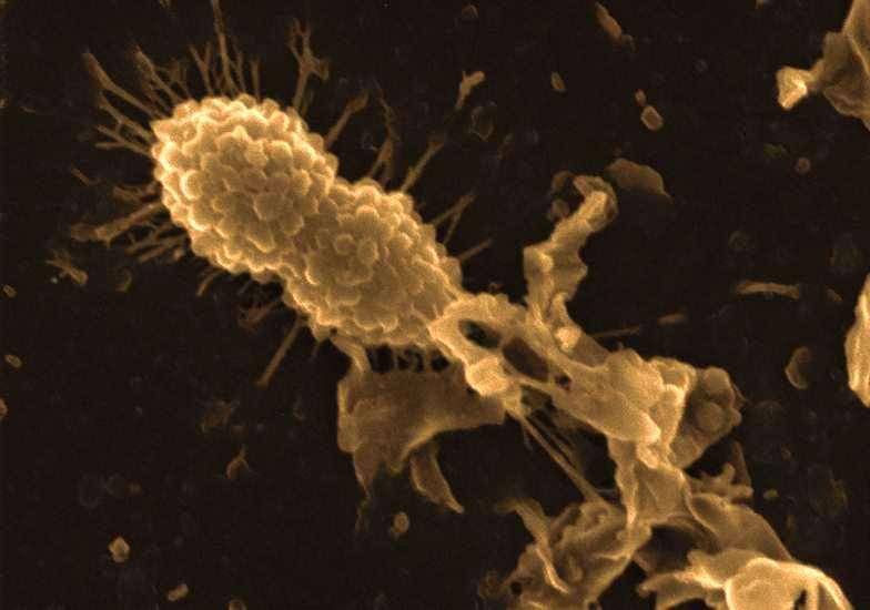 Une bactérie (en haut à gauche) s'approche d'une autre venant d'être détruite par un complexe Hamlet-antibiotique. L'Hamlet agit en induisant une dépolarisation de la membrane plasmique. © Laura R. Marks et al, Plos One