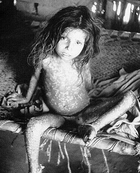 La variole est une maladie virale qui a pu être éradiquée grâce aux campagnes de vaccination. © DR
