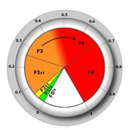 Le CirrhoMètre évalue après une prise de sang le risque d'avoir une cirrhose. © Paul Calès, DR