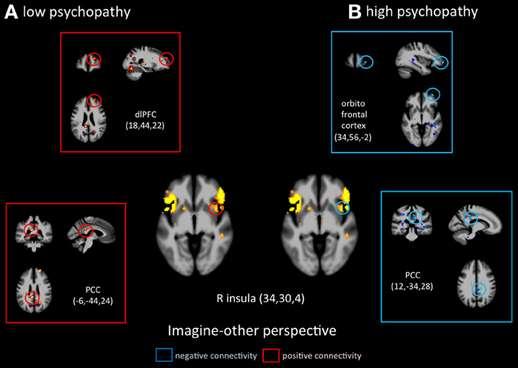 Comparaison de l'activité cérébrale d'une personne faiblement psychopathe (à gauche) et plus hautement psychopathe (à droite), en imaginant la souffrance d'autrui. © Decety, Chen, Harenski and Kiehl, Frontiers in Human Neuroscience, cc by sa 3.0, 2013