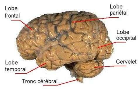 Cerveau humain adulte. Crédit : NIH/Futura-Sciences