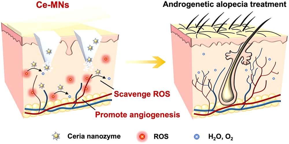 Les nanoparticules de cérium éliminent les molécules responsables du stress oxydatif et stimulent la formation de nouveaux vaisseaux sanguins. © ACS Nano 2021