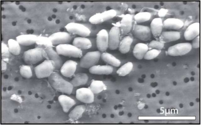 Une culture de bactéries GFAJ-1, qui s'est développée dans un milieu riche en arsenic mais sans phosphore. Mais comment fait-elle ? © Jodi Switzer Blum