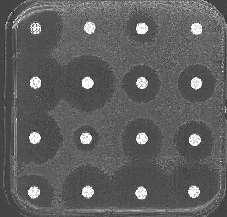 Antibiogramme : L'efficacité des antibiotiques est mesurée en fonction de l'inhibition de la croissance bactérienne qu'ils provoquent (halo autour des pastilles d'antibiotiques)