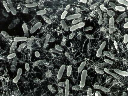 Des bactéries thermophiles, parmi les milliers d'espèces inconnues qui grouillent autour des effluves surchauffés. © Julie Huber