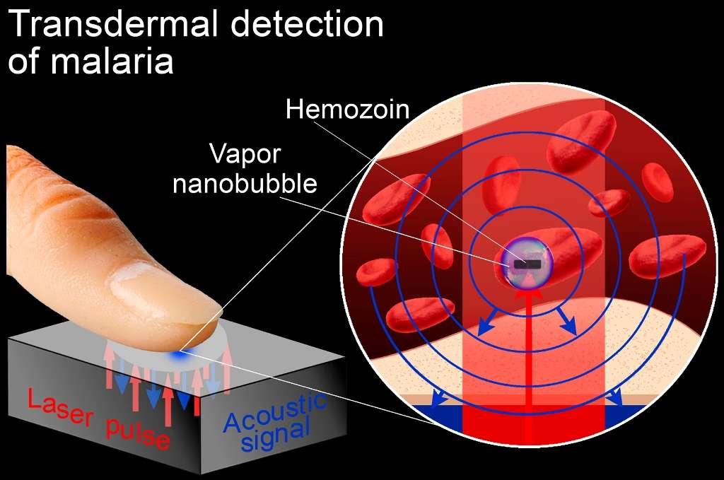 Avec la technique mise au point par des chercheurs de l'université Rice, un porteur de parasites à l'origine de la malaria peut être diagnostiqué en quelques secondes. Comme le montre le schéma, il lui suffit de poser son index sur un petit dispositif générant des impulsions laser (laser pulses). Celles-ci vont provoquer l'apparition de nanobulles de vapeur (vapor nanobubbles) caractéristiques dans les globules rouges infectés. Les ondes sonores (acoustic signal) produites par l'éclatement de ces bulles sont des traces nettes et facilement détectables de la présence de ces nanobulles. © E. Lukianova-Hleb, université Rice