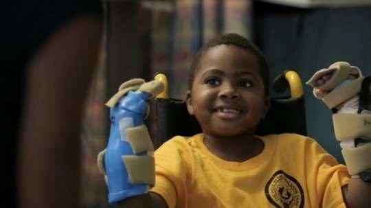Zion Harvey est le premier enfant greffé des deux mains. © The Children's Hospital of Philadelphia