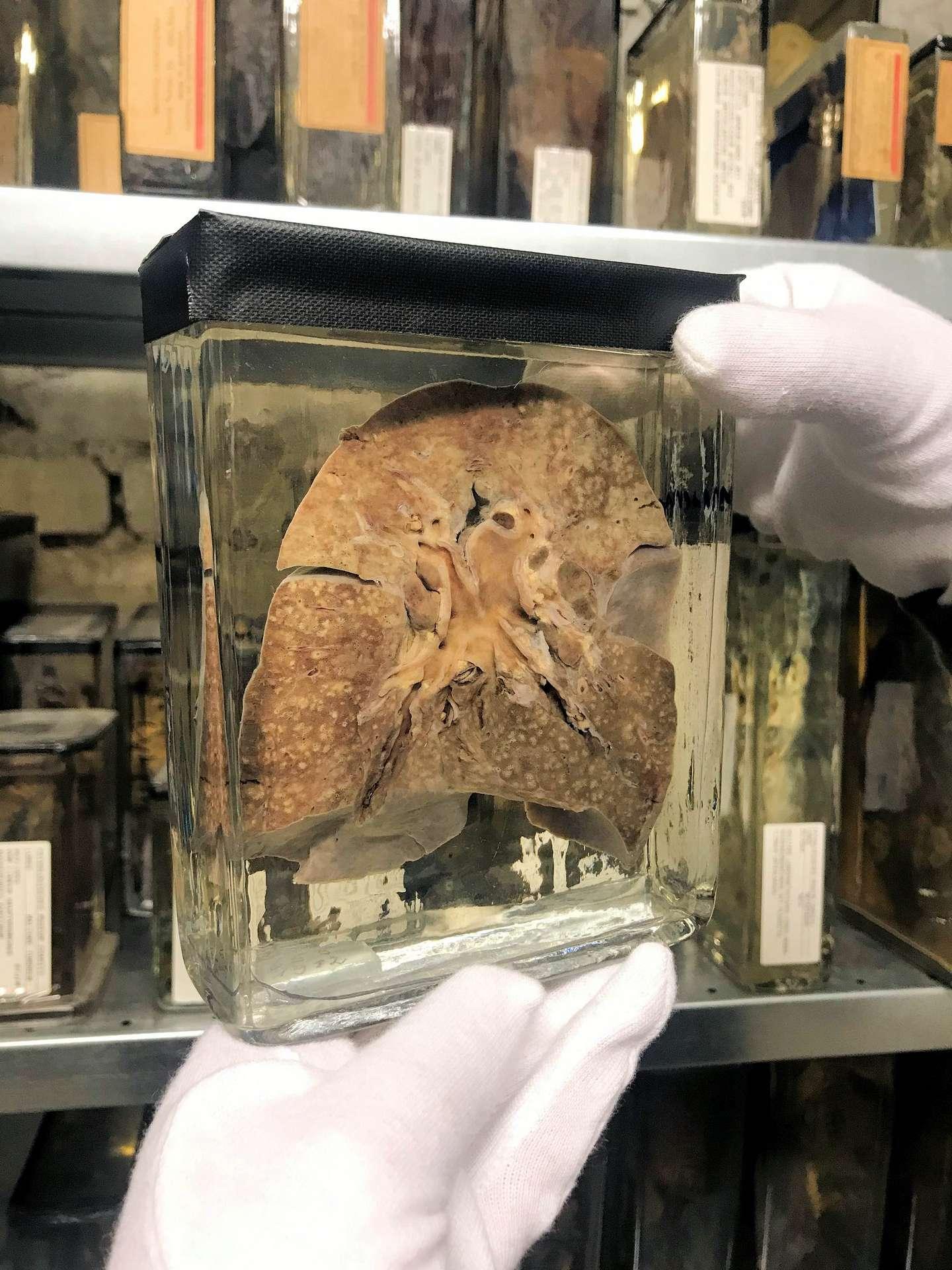 Un poumon de patient mort de la rougeole en 1912 et fixé dans la formaline. © Musée de l'Histoire médicale de Berlin de la Charité, Facebook
