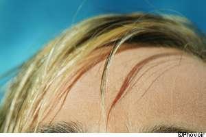 Lors d'une pelade, des cheveux ou des poils peuvent tomber brutalement. © Phovoir
