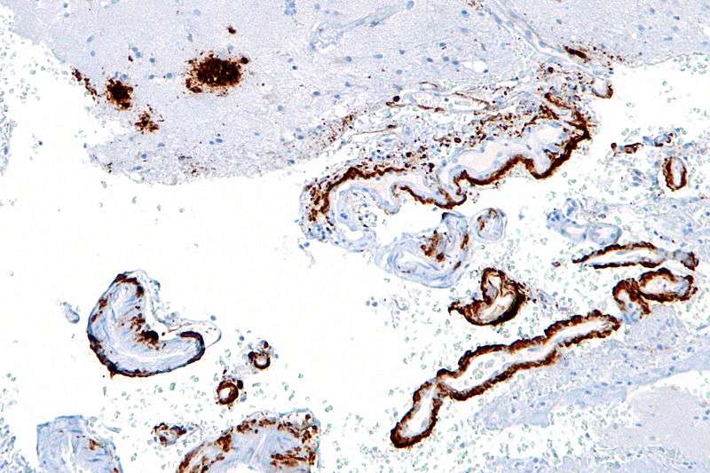 Les bêta-amyloïdes, ici marquées en marron, était déjà connues pour abaisser l'efficacité de la communication entre neurones. Désormais, on sait qu'elles semblent aussi favoriser la prolifération de la protéine Tau, qui pousse le neurone à entrer en phase de division cellulaire et à mourir. © Nephron, Wikipédia, cc by sa 3.0