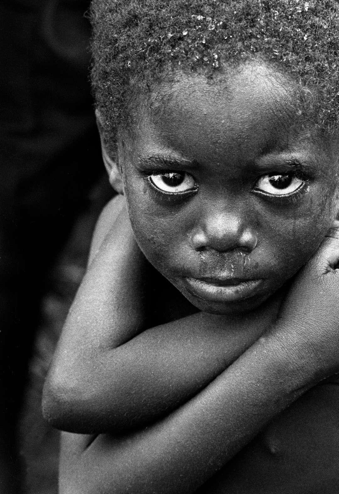 Le paludisme est une maladie qui affecte très majoritairement l'Afrique subsaharienne. Les enfants sont d'ailleurs les principales victimes, lorsqu'ils ne peuvent pas bénéficier de soins. © Daveblume, Fotopédia, cc by nc nd 2.0