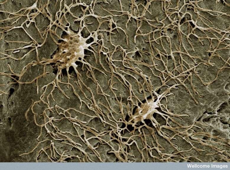 Les ostéocytes, issus des ostéoblastes, sont des cellules qui participent au maintien de la structure osseuse. Ils communiquent entre eux via de longues jonctions cytoplasmiques. Leur rôle est fondamental après une fracture. © Kevin McKenzie, Wellcome Images, Flickr, cc by nc nd 2.0