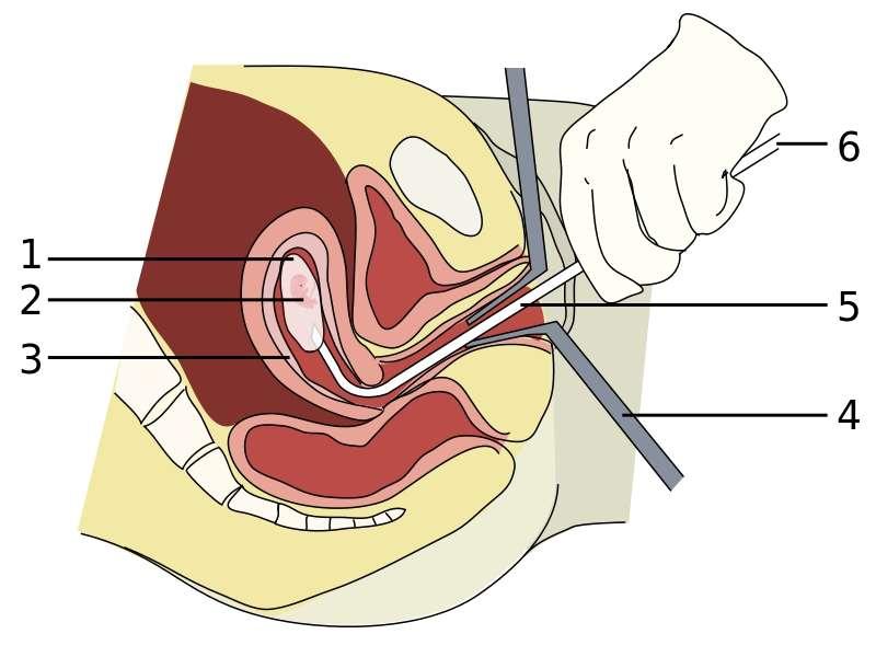 Cette image représente l'avortement chirurgical, après environ huit semaines de gestation. L'embryon (2) contenu dans la poche amniotique (1) est aspiré par une vacurette (5) reliée par une pompe (6). Le taux de réussite est de 99,7 %. © Andrew C, Wikipédia, cc by sa 3.0