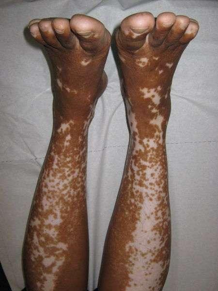 La décoloration de la peau à cause du vitiligo peut affecter des surfaces corporelles plus ou moins importantes. © Grook Da Oger, Wikipédia