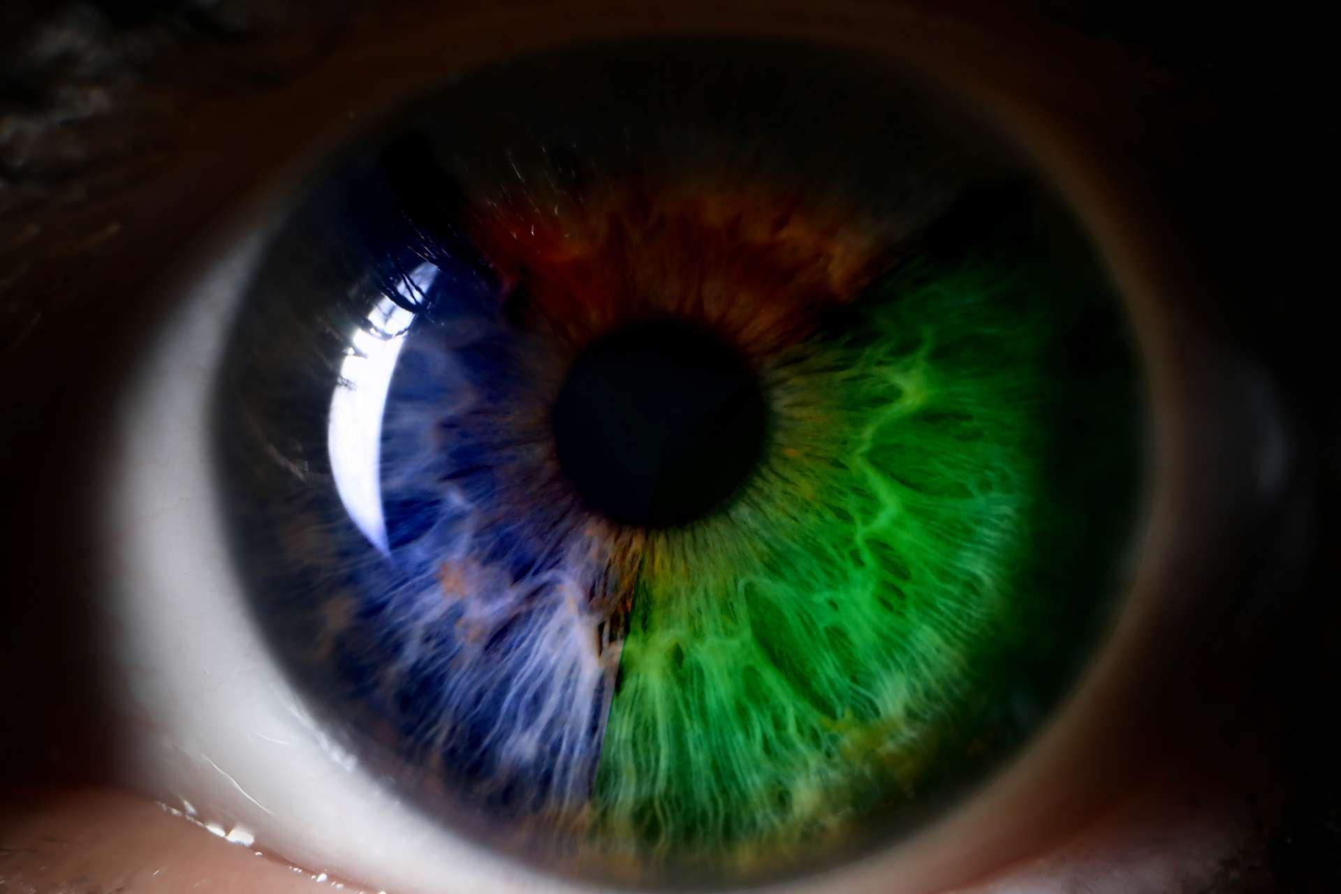 Il existe plusieurs sortes de dyschromatopsie, appelée daltonisme par abus de langage. © H_Ko, Adobe Stock