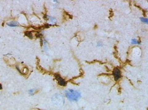 Les cellules microgliales sont colorées en marron. © Grzegor Wicher / Wikimedia Commons (domaine public)