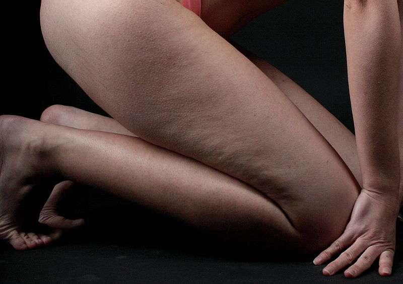 La cellulite concerne 9 femmes sur 10 au cours de leur vie, contre seulement un homme sur 50. © Lanzi, Wikipédia, cc by 3.0