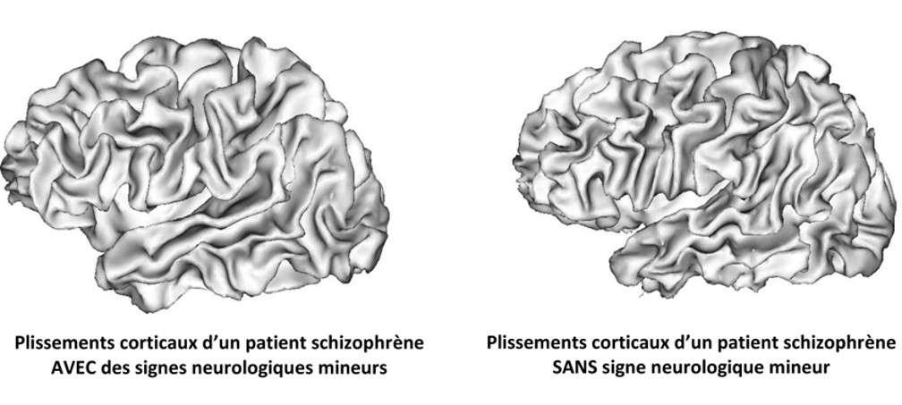 Durant la période fœtale, le cerveau prend sa forme caractéristique : le cortex se plisse. Des perturbations de ce plissement pourraient être un marqueur de la schizophrénie. © Inserm