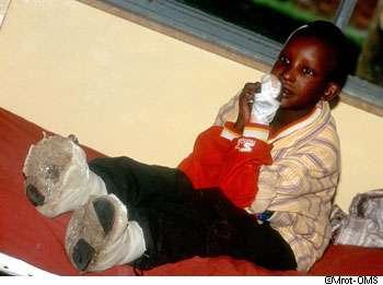 La lèpre est éradiquée dans un grand nombre de pays. © Mrot, OMS