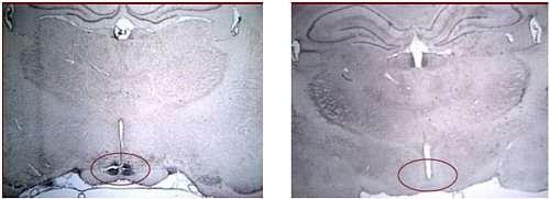 Ces microphotographies montrent une coupe de l'hypothalamus de rats soumis à un régime riche en protéines (à gauche) et de rats témoins (à droite). Les taches sombres révèlent la présence de facteurs impliqués dans la mise en place de la sensation de sati