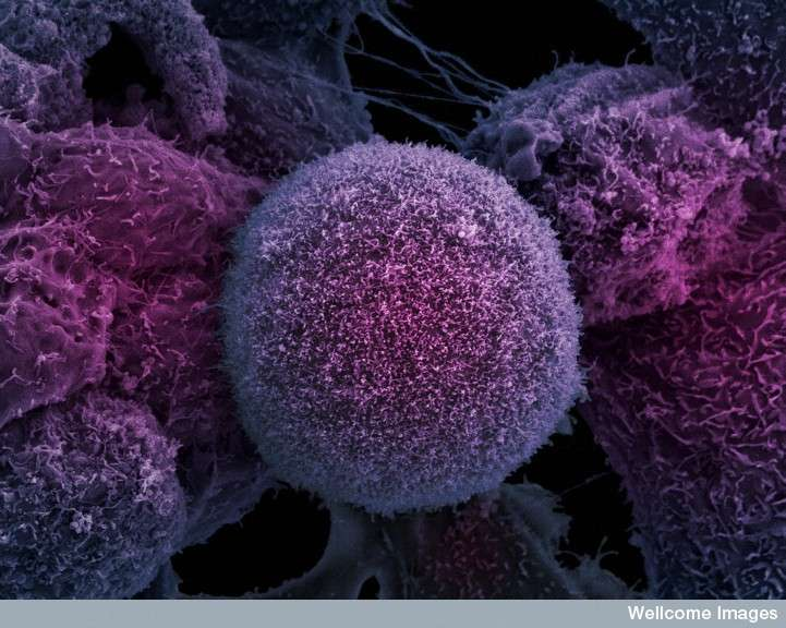 Le buzz du mois : cancer de la prostate, un traitement révolutionnaire aux ultrasons. Le cancer de la prostate, dont on voit une cellule tumorale à l'image, est le plus fréquent de tous les cancers, mais pas le plus mortel. Les scientifiques ont déjà testé un nouveau dispositif révolutionnaire qui pourrait le faire vaciller : le Focal One. Les premiers résultats, menés dans un hôpital lyonnais, paraissent prometteurs. © Anne Weston, Wellcome Images, cc by nc nd 2.0