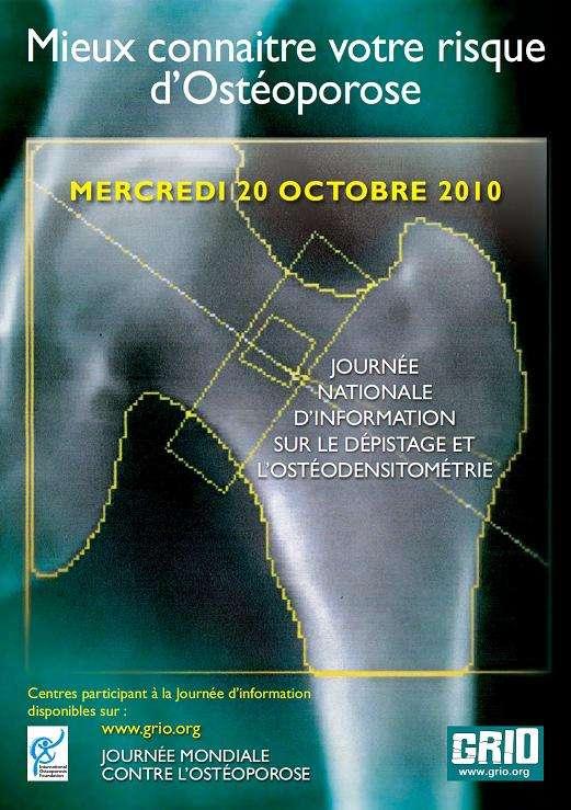 La Journée mondiale contre l'ostéoporose est l'occasion de s'informer sur les risques et le dépistage de la maladie. © Grio
