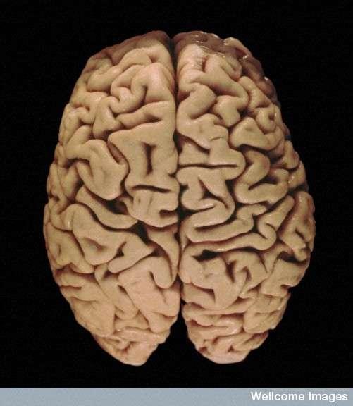 Le cerveau humain est connu pour ses nombreuses circonvolutions. En effet, dans notre espèce, le cortex est très développé : déplié, il couvre une surface de 2.200 cm2, tandis que celui du chimpanzé, notre plus proche cousin, atteint seulement 500 cm2. © Heidi Cartwright, Wellcome Images, Flickr, cc by nc nd 2.0