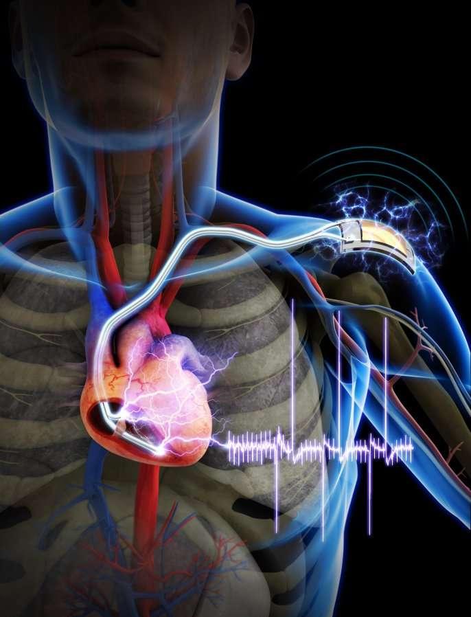 Grâce à un nanogénérateur flexible, des chercheurs de l'Institut supérieur coréen des sciences et technologies sont parvenus à alimenter un stimulateur cardiaque implanté sur un rat. Le système produit l'énergie à partir des mouvements des muscles. Il ne pourrait pas remplacer complètement la batterie d'un pacemaker mais au moins prolonger sa durée de vie qui est actuellement d'environ sept ans. © KAIST