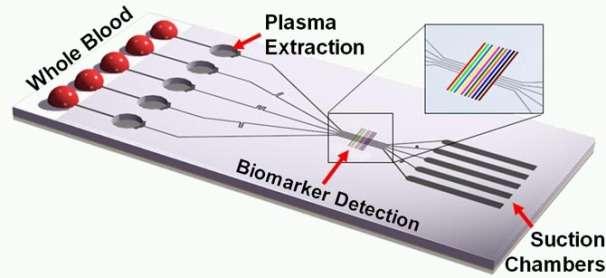 Un prototype de laboratoire sur puce, destiné à l'analyse du plasma sanguin, élaboré grâce à la microfluidique et ne nécessitant aucun circuit électronique. Une minime quantité de sang (Whole Blood) est insérée (à gauche). C'est une pression d'air plus faible (Suction Chambers) qui attire le liquide vers la droite. Plus lourds, les globules rouges et les globules blancs s'arrêtent dans la première chambre (Plasma Extraction). Le plasma seul s'écoule jusqu'au détecteur de biomarqueurs (Biomarker Detection) où est réalisée l'analyse. Ce genre de dispositif nécessite le contrôle fin du mouvement de fluides à toute petite échelle, ce que l'on ne sait pas encore bien faire. © Ivan Dimov, UC Berkeley