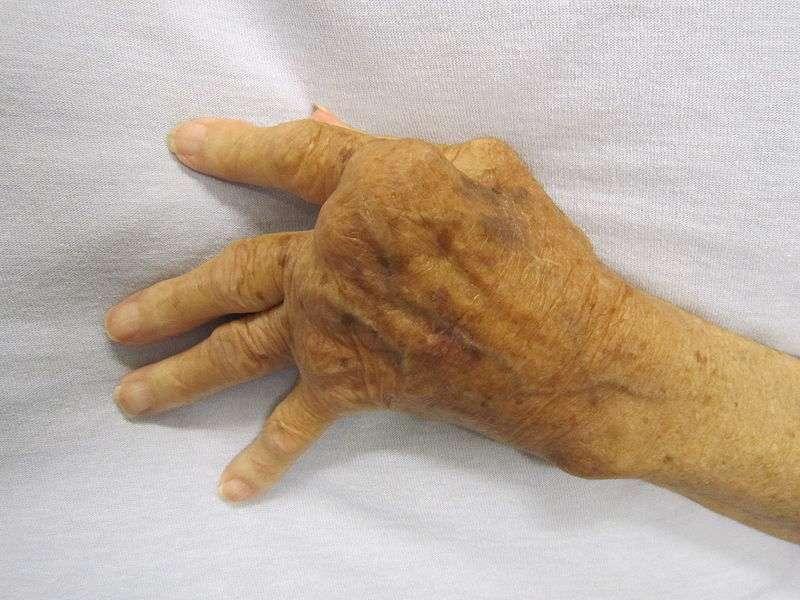 La polyarthrite rhumatoïde est une maladie inflammatoire qui se traduit notamment par une atteinte articulaire, et qui amène à des déformations assez spectaculaires, comme peut en témoigner cette main déformée. © James Heilman, Wikipédia, cc by sa 3.0
