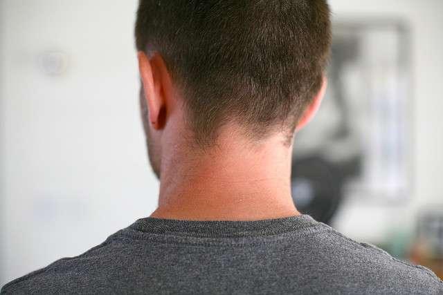 Les hernies cervicales se produisent au niveau des vertèbres du cou et peuvent entraîner une douleur si elles compriment un nerf. © numberstumper, Flickr, cc by sa 3.0