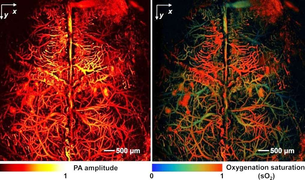 Ce cerveau de souris a été imagé in vivo, sans agent de contraste, par microscopie photoacoustique (PAM). Les chercheurs ont utilisé l'hémoglobine dans les globules rouges du sang pour fournir le contraste (image de gauche). Les niveaux de saturation en oxygène dans l'hémoglobine dans le même cerveau de souris révèlent les artères et les veines corticales (image de droite). © Junjie Yao et Lihong Wang, WUSTL