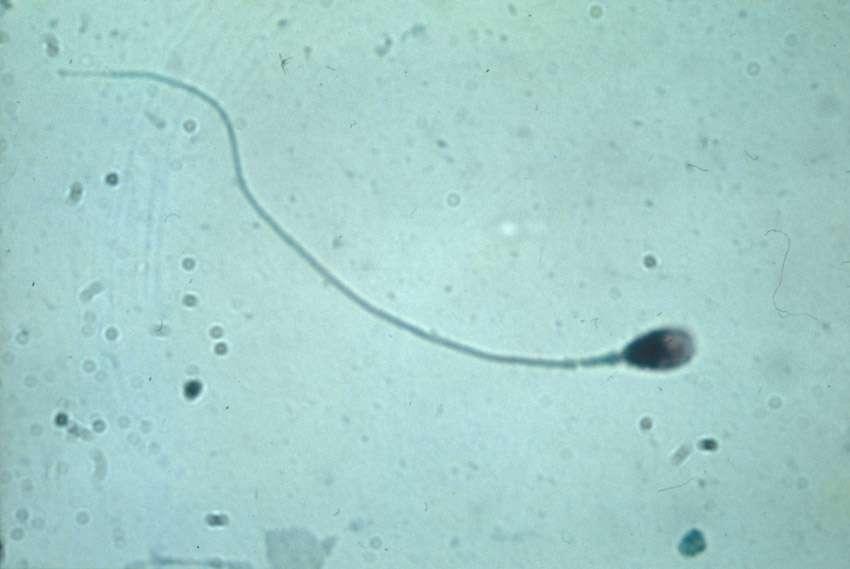 Parmi des centaines de millions de concurrents au départ, un seul spermatozoïde fécondera l'ovule. Grâce notamment au courant régnant dans les trompes de Fallope, il parvient à s'orienter en direction de sa cible ultime. © Denise Escalier, Inserm