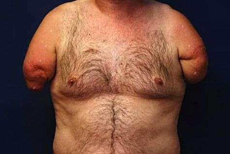 L'accidenté de 54 ans avant la transplantation de deux bras. Crédit Université munichoise.